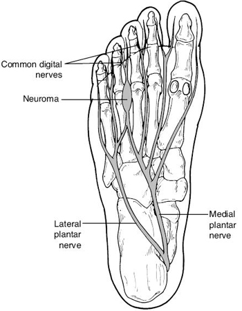 Mortons Neuroma and Intermetatarsal bursitis