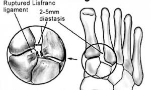 Tarsometatarsal injuries