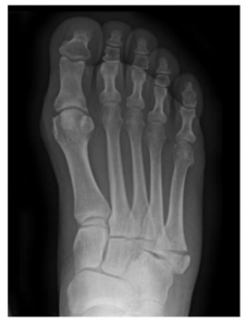 5th Metatarsal Fractures