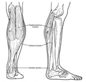 Achilles Insertional Tendinopathy