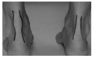 Achilles Non Insertional Tendinopathy