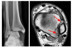 Ankle Syndesmosis Injuries 1
